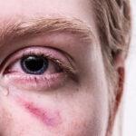 Eye Injury | Eye trauma a serious eye illness