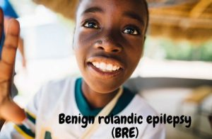 Benign rolandic epilepsy (BRE)