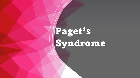 Paget's Syndrome